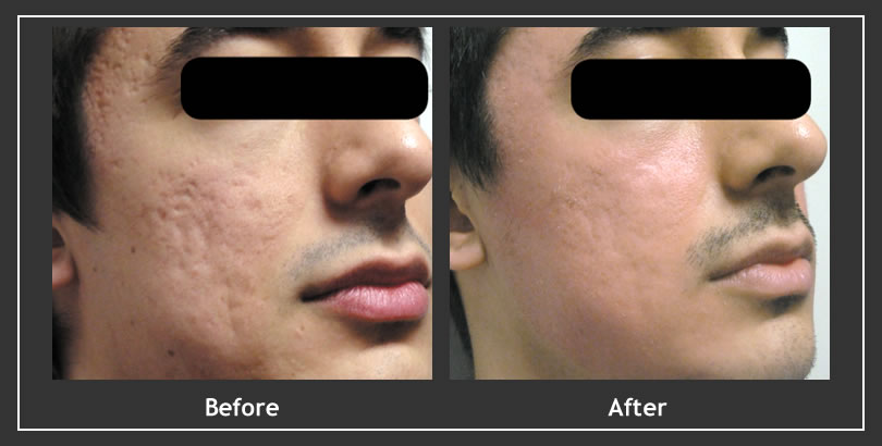 Fractional acne