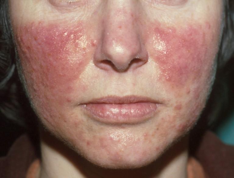 onzuivere huid gezicht